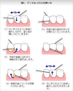 image1-6